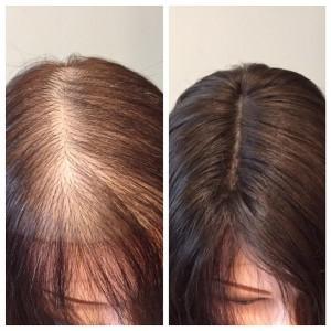 Alopecia part